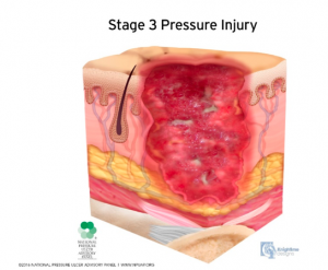 Open Crater Pressure Sore