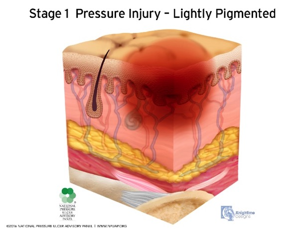 Pressure Ulcers: Lightly Pigmented