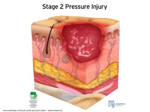 Pressure Ulcer: Pressure Injury